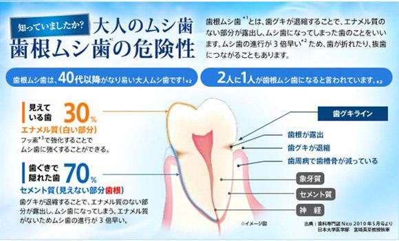 進行が3倍早い「歯根ムシ歯」には十分にご注意を
