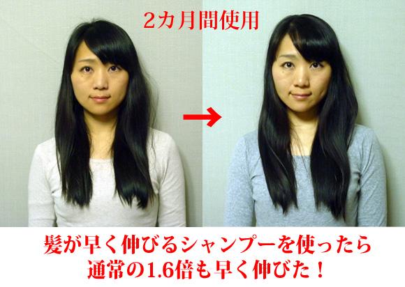 【通常の1.6倍】髪が早く伸びるシャンプーを使ったら本当に早く伸びてビックリした!