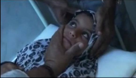 【動画あり】目から小石が出てくる奇病に悩まされる少女 / 症状が知れ渡ると村全体がパニックに