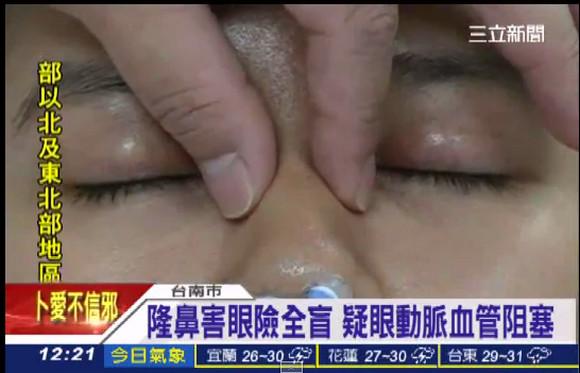 """【なぜ】女性が鼻を高くする """"プチ整形"""" → 麻酔から覚めたら左目が失明 / 右目の視力も低下し回復の見込みはなし"""