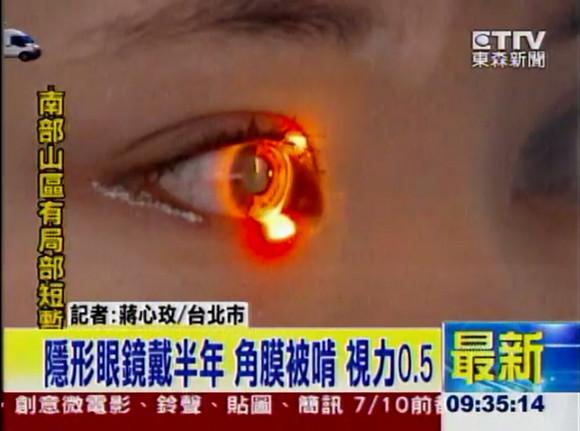 女子大生が半年間コンタクトレンズをつけっぱなし → 「アカントアメーバ角膜炎」にかかり失明の危機 / 微生物に角膜を食べられる危険な病気