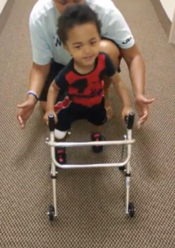 【感動】生まれつき足に障害を抱える幼児が義足と歩行器ではじめての一歩を踏み出す瞬間映像