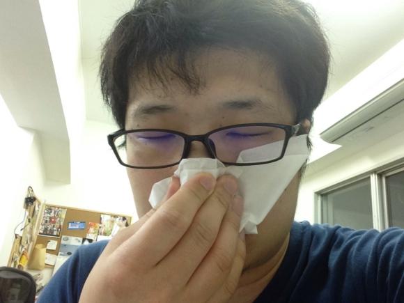 【あるある】5月半ばになっても花粉症に苦しんでいる人にありがちなこと30連発