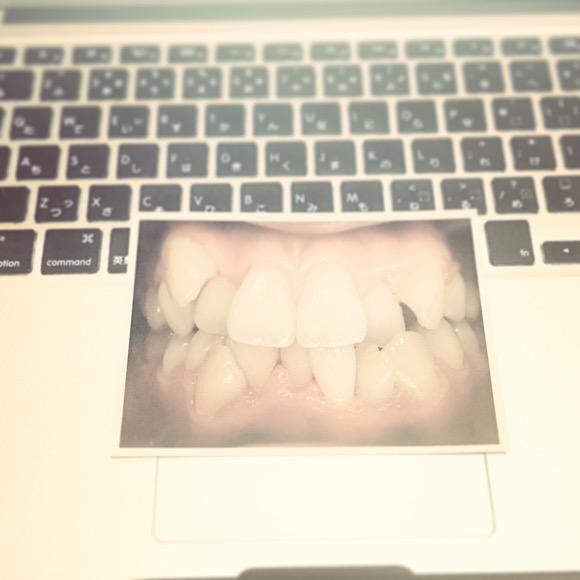 【あるある】歯並びが悪い・悪かった人あるある30