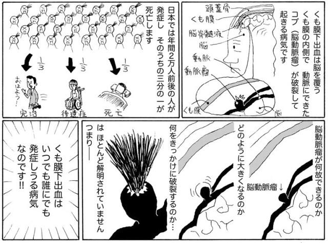 【まんが】くも膜下出血を発症した漫画家が描いた実録ドキュメントくも膜下出血マンガ『くも漫。』