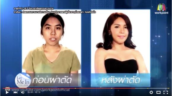【動画あり】タイで『ビューティー・コロシアム』っぽい整形番組がスタート! 「変わりっぷりがヤバい」と人気の兆し