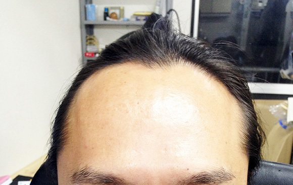 【朗報】「歳をとると毛が薄くなる仕組み」が解明される → 「誰にでも効果があるのか?」教授に聞いてみた