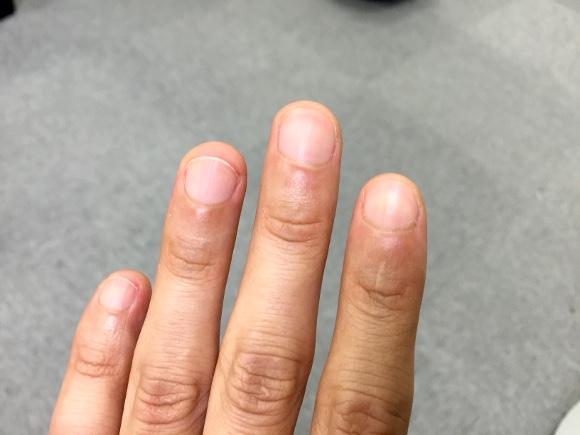 【実体験】「爪を噛むクセ」を直す3つの方法