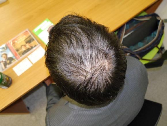 【薄毛あるある】30〜50代の頭頂部薄毛サラリーマンにありがちな事40連発