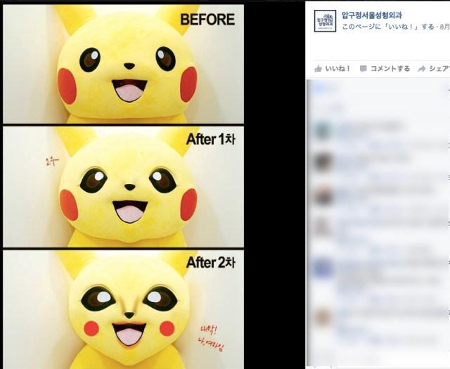 ピカチュウ、韓国で整形したってよ! 韓国の美容整形外科の広告にピカチュウが登場 / ポケモンGOブームもここまで来たか!!