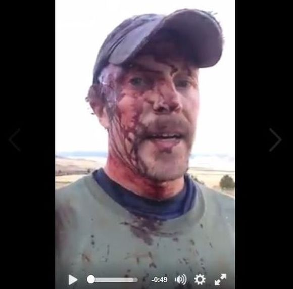 【閲覧注意】2時間で2回もクマに襲われた男性が瀕死の重傷に! それでも自撮り動画に怪我の様子を収めた彼がかなりのツワモノ!!