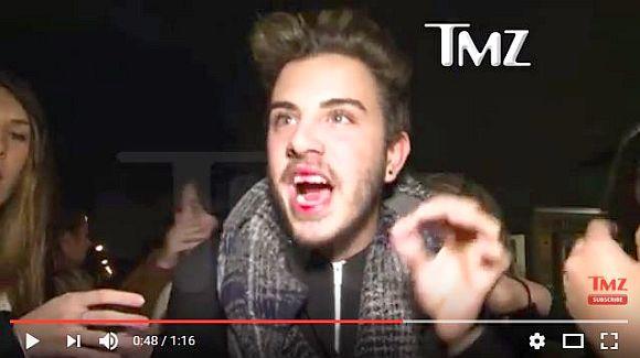 ジャスティン・ビーバーがファンの顔をパンチ! 口から血を流すファンが動揺しまくるハプニングが!!