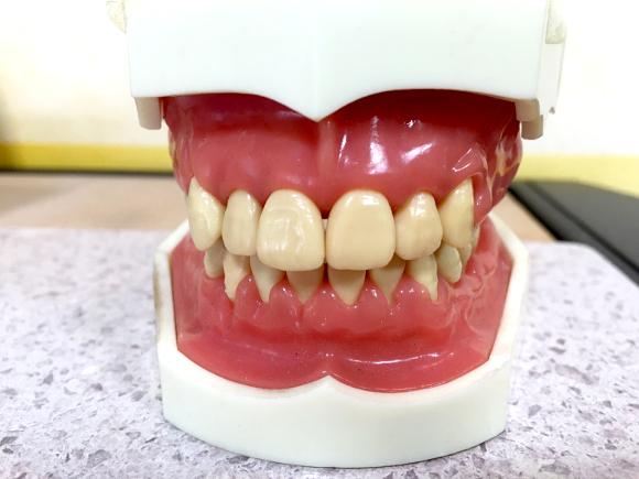 歯医者あるある30連発
