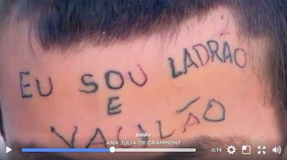 額に「私は泥棒で負け犬です」とタトゥーを彫られた少年に同情……自転車を盗もうとした疑いで極悪非道な傷を負うハメに