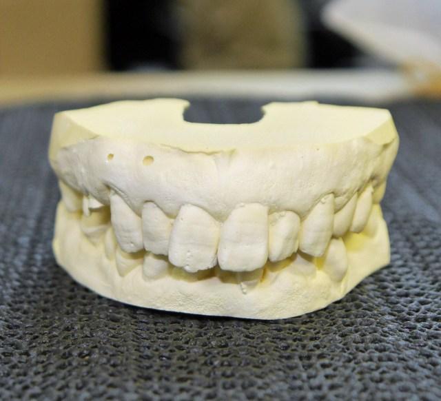 【実体験】5本の歯を失った男が真剣に治療に挑んだ結果! かかった治療費とその全プロセスを公開