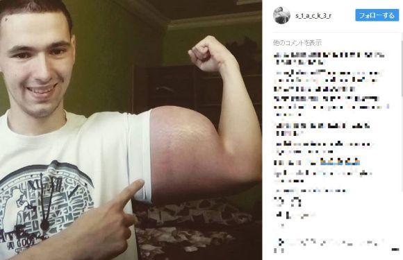 リアル・ポパイかよ! ニセ筋肉注射で「腕周り60センチ」になったロシア人青年がヤヴァい