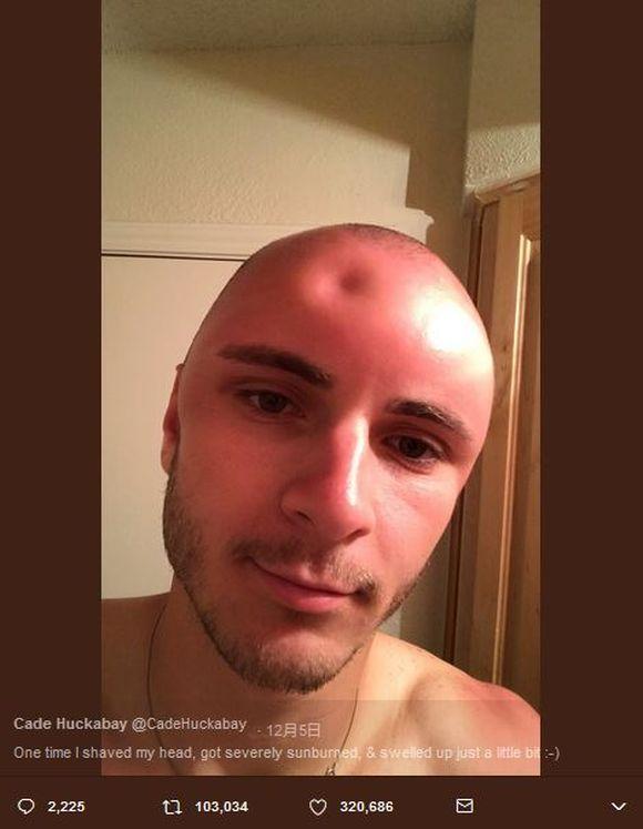 日焼けしすぎて「頭が妊娠したみたいになった」という米男性が話題 / 額を指で押したら凹みが出来たらしい