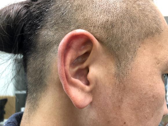ごっそり 耳 掃除