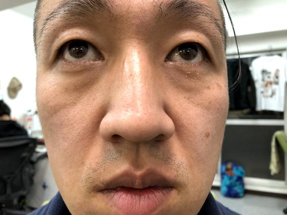 【閲覧注意】「鼻の角栓を抜きまくる動画」の中毒性が激しくヤバイ / 気持ち悪いのにニュルッと取れたときの爽快感は異常