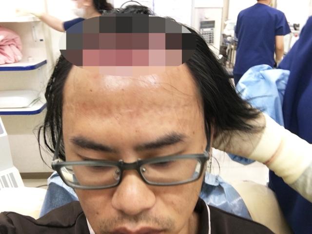 【閲覧注意】植毛手術でハゲを治療したら「地獄」を見たでござる