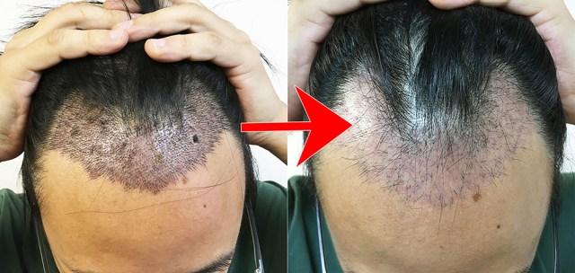 【衝撃】植毛手術をしたのに約1カ月半で元のハゲに戻ったでござる → 医師に聞いてみた結果