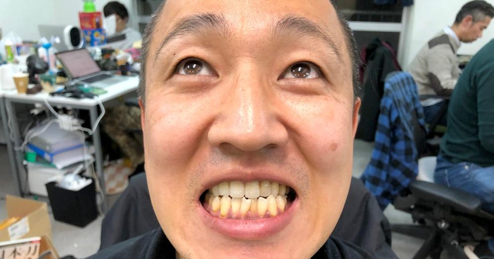 歯石 取り で 自分 歯石を自分でとる方法