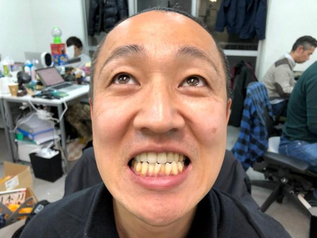 【閲覧注意】20年間溜めた「歯石」を除去する動画が気持ち悪いけどクセになる