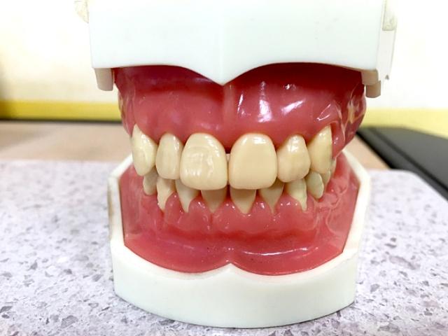 【コラム】歯医者に行く前日に限って入念に歯を磨いてしまうのはなぜなのか?