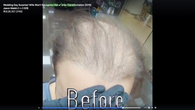 「薄毛の男性を短時間でフサフサにする」動画がマジでヤバい / 再生回数2700万回超の大ヒット!