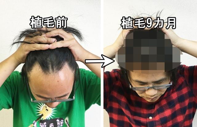 【ハゲ衝撃】9カ月で剛毛がボーボーに! AGAで悩んでいた37才男、毛が生えすぎてリーゼントみたいになる