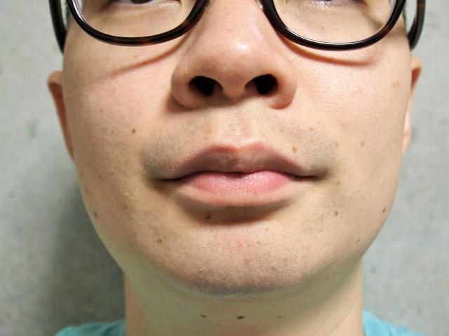 ヒゲ脱毛2年半の経験者が脱毛を考える人に贈るアドバイス / 十数万円かかったけど節約につながる