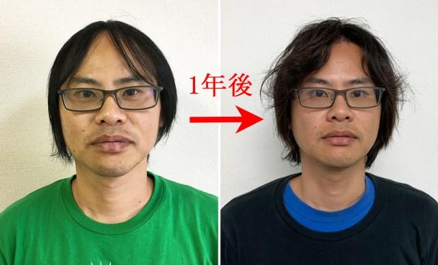【ハゲ保存版】AGA治療で植毛手術して1年の経過を包み隠さずまとめました