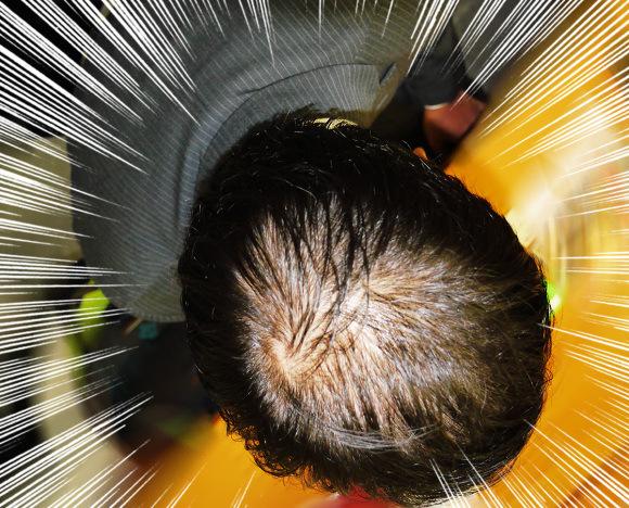 【薄毛必見】本日10月20日は「頭髪の日」なので、薄毛コンプレックスと改善方法について本音で語ってみた。