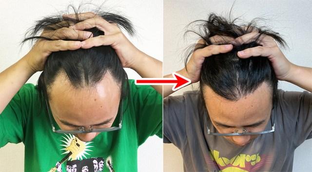 【頭髪の日】自毛植毛した人にありがちなこと39連発!