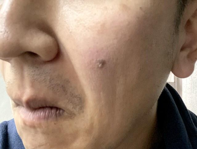 【悪性?】顔のシミが徐々に濃くなり立体化 → ドキドキしながら皮膚科に行ってみた結果…