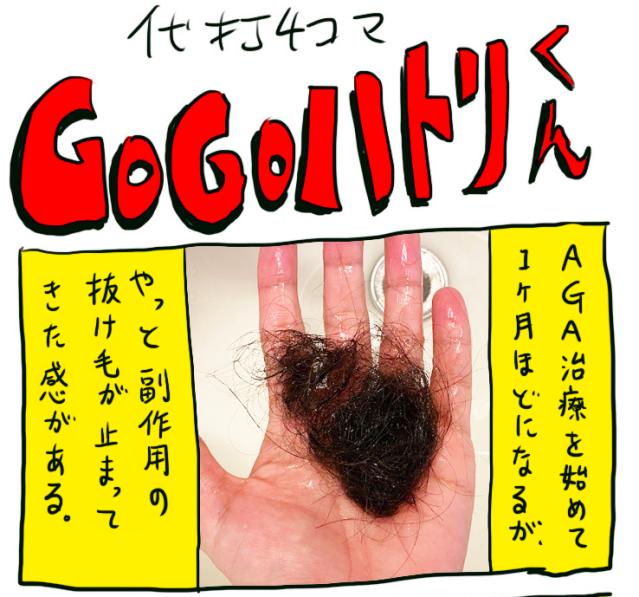【代打4コマ】第79回「AGA治療開始から1カ月経ちました」GOGOハトリくん