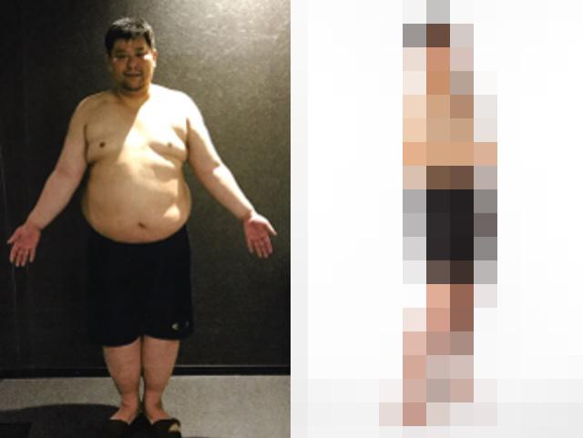 【ダイエット元年】ライザップの「超減量ビフォーアフター」が凄まじい! マイナス85.9キロを達成した男性がこちらです