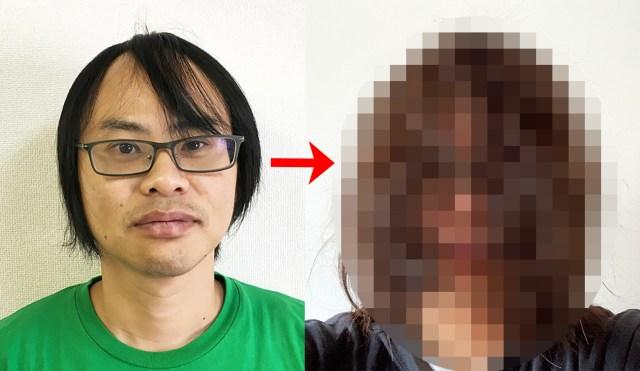 """「google1位のハゲ」が植毛手術から """"ほぼ2年"""" 髪を伸ばし続けたらこうなった"""