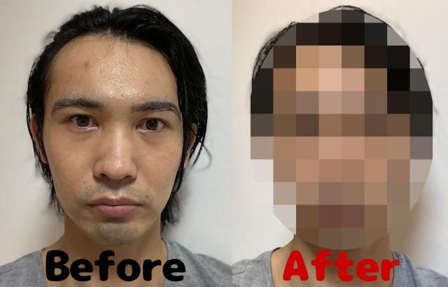 【メンズ美容】ロボットの頭部にしか見えないLEDマスクを1週間かぶり続けた結果…