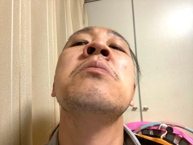 たまに鼻の奥から出てくる「黄色くてメッチャ臭いツブ」は何なのか? 耳鼻科の先生に聞いてみた