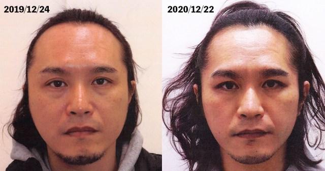 もはや整形レベルの別人! 薄毛に悩んでいた男が「AGA治療」を始めて1年経ったらこうなった